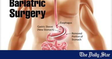 Bariatric surgery tied to longer life expectancy among obese