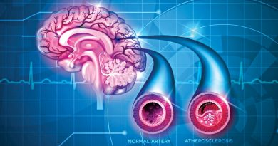 World Stroke Day to encourage healthy living